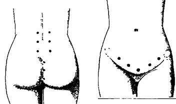 Мышцы потенции  лобковокопчиковая мышца